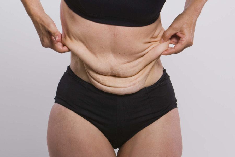 Details about Liposuction Surgical procedure