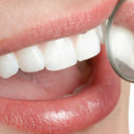 Powerful Teeth Whitening Tips and Ideas: The Complete Guide