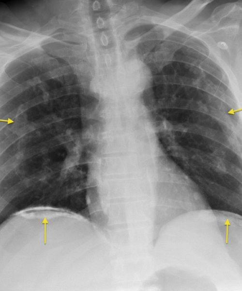 Pleural Plaques – Asbestos Related Disease Compensation Claim Solicitor