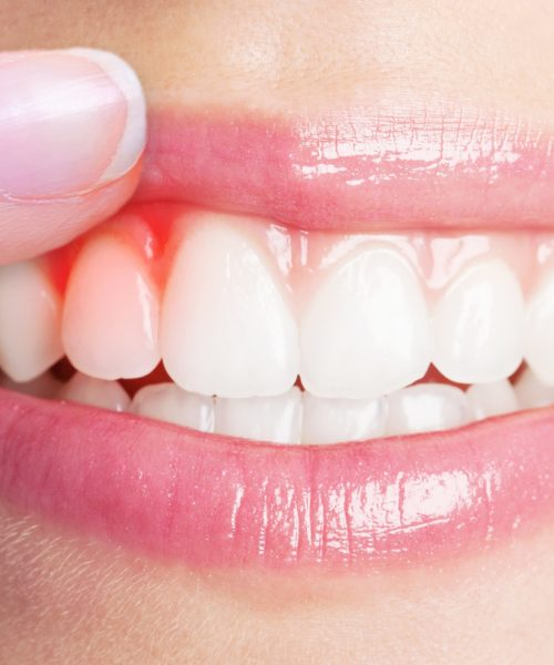 Gum Disease treatment at Home or Periodontist?