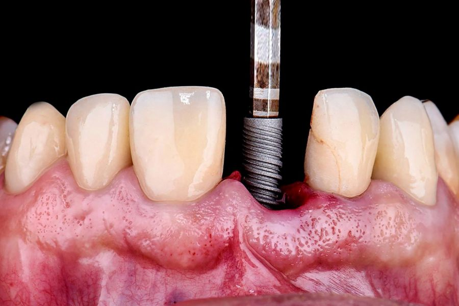 Inferior Dental Health Can be Fatal